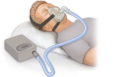 How Much Does a CPAP Machine Cost?