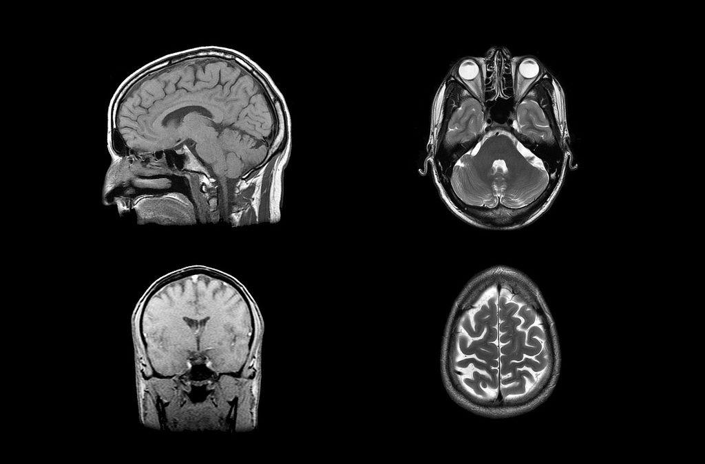 Study Finds Sleep Apnea Related to Thinning Brain Tissue